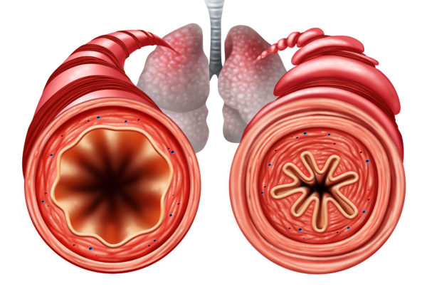 好酸球は気道の神経密度を高めて気道過敏を助長して喘息をより重症化しうる