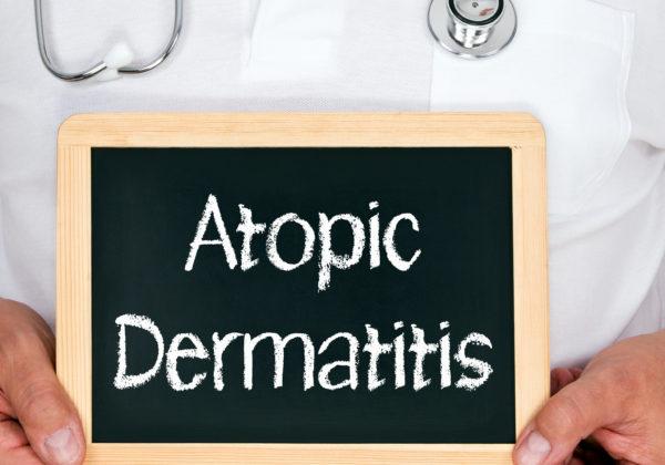 アトピー性皮膚炎小児の食物アレルギー併発を防ぐには皮膚バリアの改善が必要